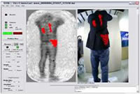 Whole Body Scanners (AIT) - Current Technologies